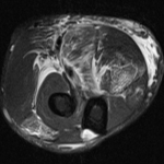 Edema intra-muscular em parte da musculatura extensora e flexora (mm. braquiorradial, pronador redondo, flexor superficial dos dedos, flexor ulnar do carpo e extensor dos dedos). Significativo edema dos planos gordurosos da região ântero-medial do cotovelo